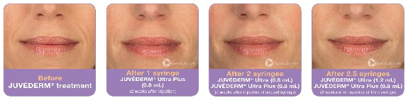 Before - During - After Juvederm Treatment
