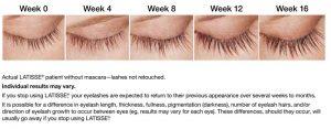 Eyelash grow starting from week 0 to week 10