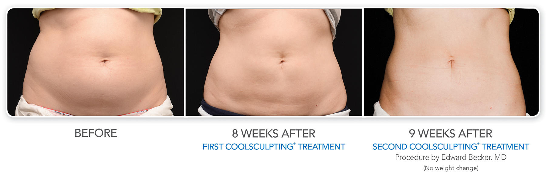 the stomach of a patient before and after the coolsculpting procedure
