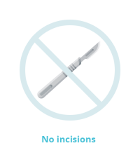 no incisions